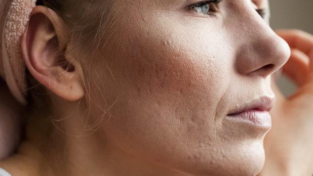 лечение рубцов на коже лица